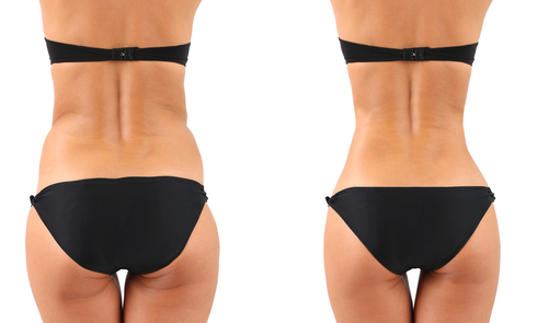 le praticien peut pratiquer une liposuccion sur l'ensemble du corps